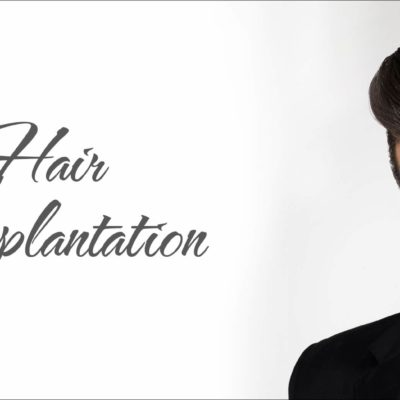 Hair-Transplantation-Tips
