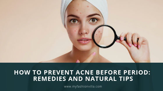 How To Prevent Acne Before Period_ Remedies And Natural Tips