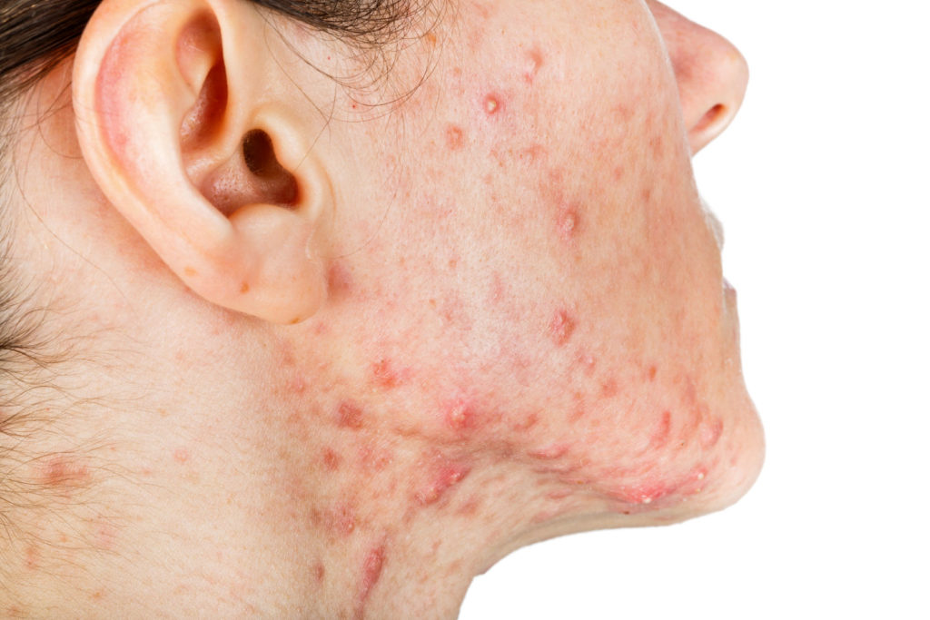 cystic acne on skin